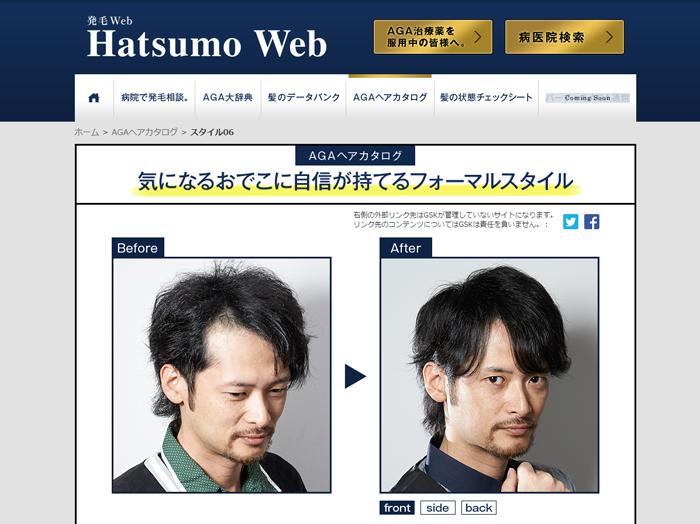 発毛相談|hatsumo-web5