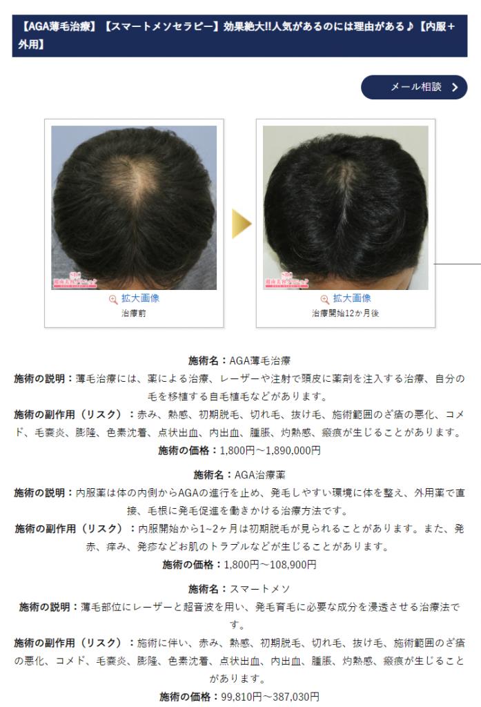 湘南AGAクリニック(SBC) 症例写真 公式画像