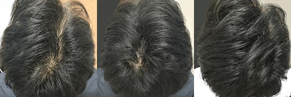 AGAヘアクリニック(ヘアクリ) 症例写真_4 公式画像
