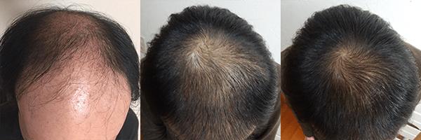 AGAヘアクリニック(ヘアクリ) 症例写真_3 公式画像