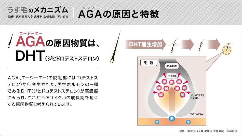 うす毛のメカニズム|AGAの原因と特徴-AGA-news